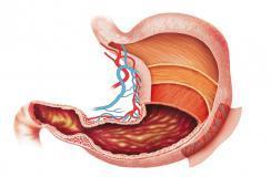 胃癌是什么导致的?生活中哪些人容易患癌