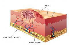 预防尖锐湿疣 患者日常多注意这些小细节