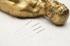 针灸这些穴位可以帮助减肥,但还需要配合这些方法