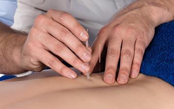 针灸,针灸养生,针灸减肥,穴位针灸,中医针灸
