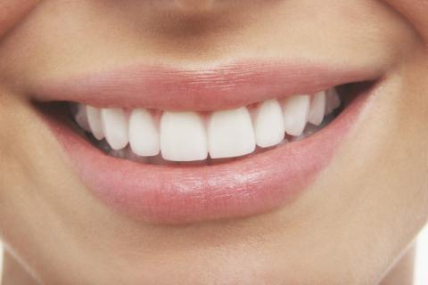 牙缝间长出疙瘩是什么?消除牙缝间疙瘩的偏方你知道几个?