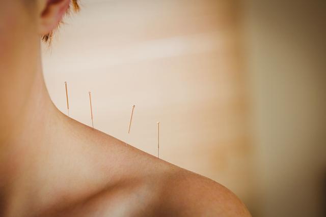 针灸对人体的作用非常多,这些效果远领先于现代医学治疗