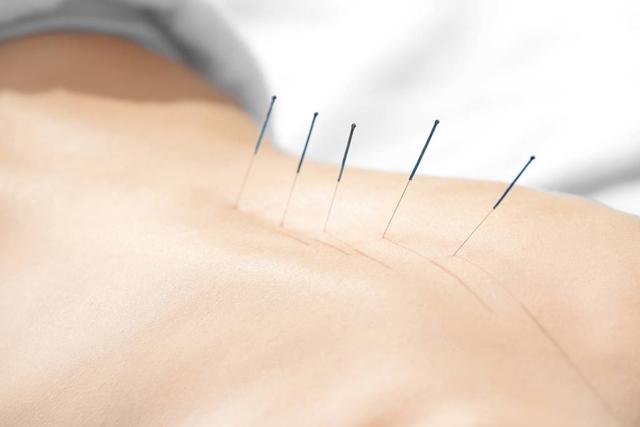 要避免针灸副作用,针灸治疗时的注意事项不得不知!
