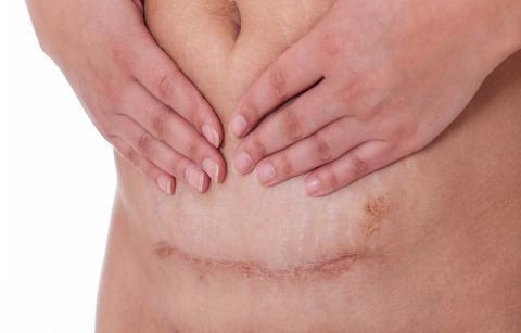 疤痕体质患者在日常生活中该如何预防疤痕?