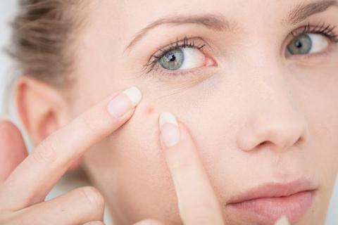 脸颊老长痘多是肺肝失常惹的祸 调理方法有哪些?