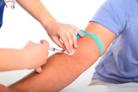 出现肝掌不等于患上慢性肝炎 肝掌患者常见的误区盘点