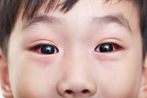 预防红眼病的最佳方法 从养成良好的卫生习惯开始