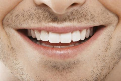 牙齿不齐怎么办 牙齿日常护理要避开这些误区