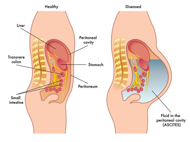 腹胀有这几个原因,按摩这几个穴位能治疗腹胀