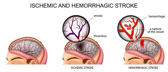 高血压危害生命,这几个穴位能够稳定血压