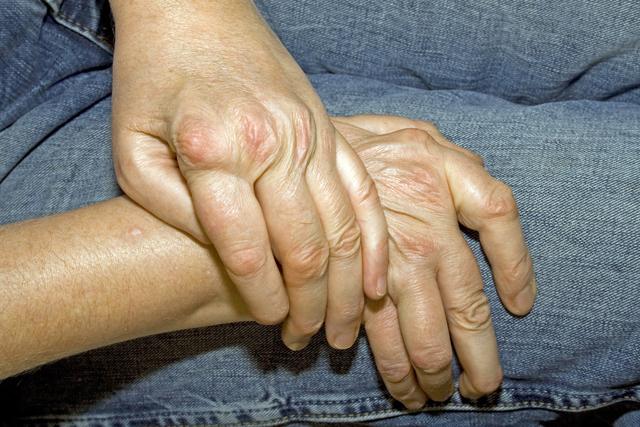 风湿针灸效果差强人意,治疗风湿方法要选对