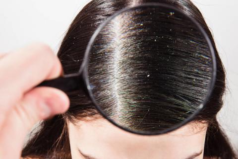 头皮屑多怎么办?这个方法坚持做就能减少头皮屑
