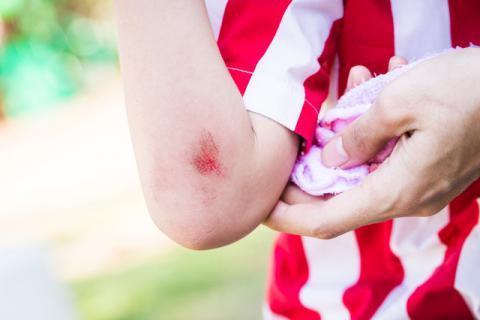 为什么伤口结痂会感觉痒 原来是它惹得祸