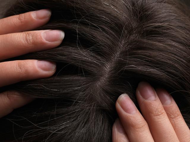 出现白头发的原因有哪些