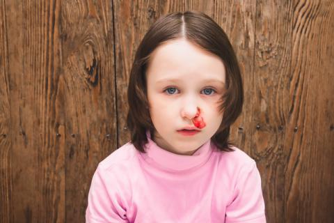 为什么孩子在夏季容易流鼻血?有哪些原因导致