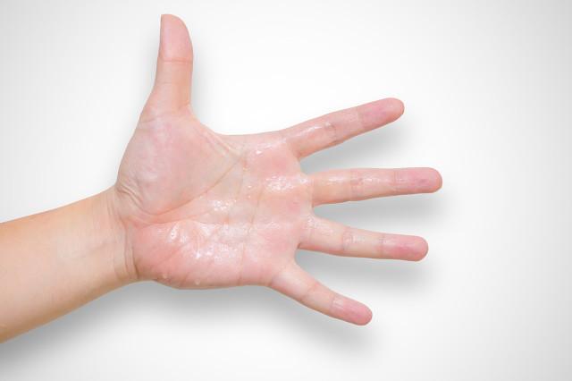 夏天手出汗怎么办?手汗症状严重往往和这个有关系