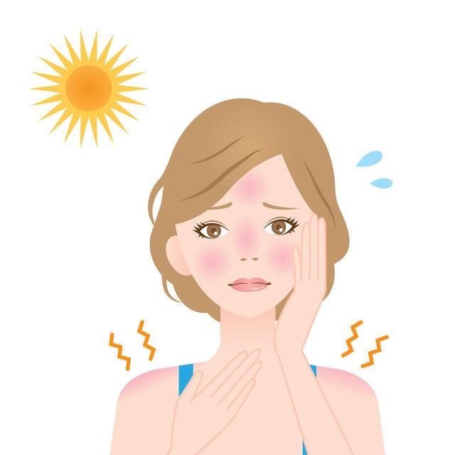太阳晒伤脸怎么办?补水滋润一个都不能少