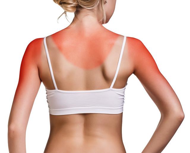 皮肤晒伤脱皮怎么办?夏季防晒工作不容忽视