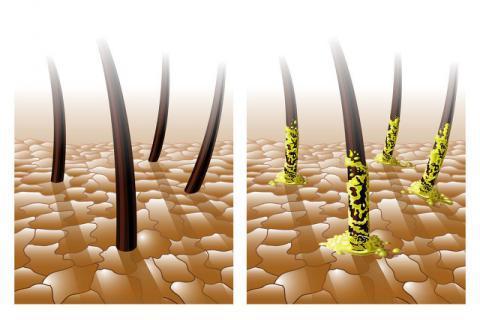 头发油是因为体内湿气重吗