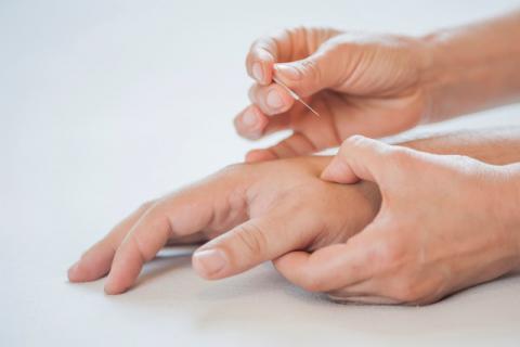 针灸过后有酸疼正常吗,针灸后需要注意些什么