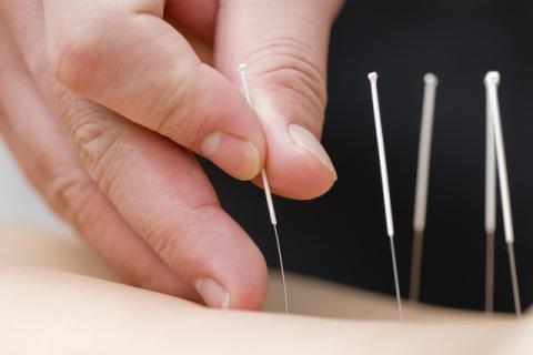 针灸能治性功能吗