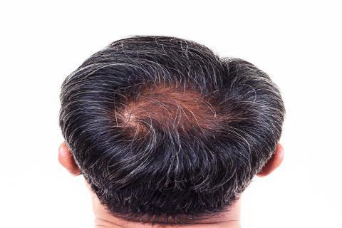 长时间对着电脑会脱发,这有医学根据吗?