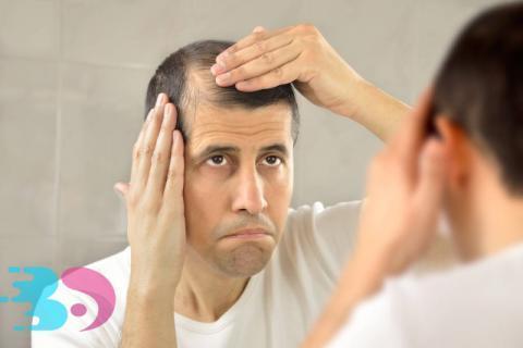为什么脱发只脱头顶?用生姜水洗头发会生发吗