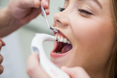 拔牙以后如何缓解疼痛,拔牙以后如何护理