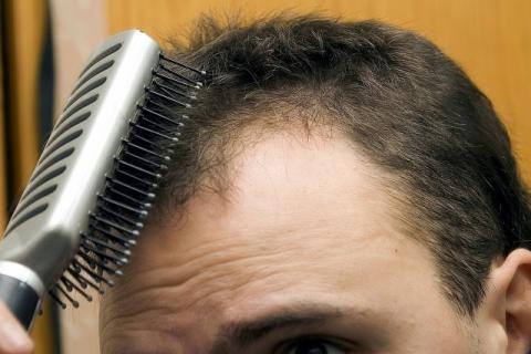 停止无氧运动缓解脱发