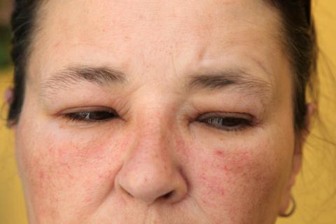 每年开春脸过敏肿胀怎么办,有什么好办法