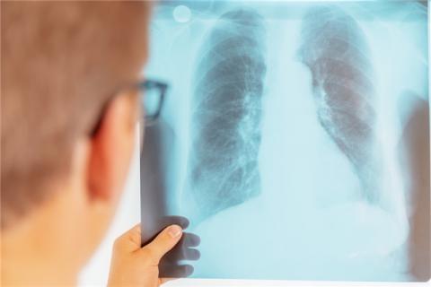呼吸机须要调养吗?呼吸机的寿命有多长?