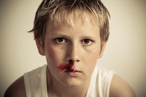 秋天流鼻血是上火�е�的��?秋天流鼻血不只是因�樯匣�