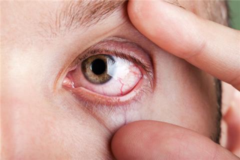 哪些人要慎用护眼贴?可以戴着护眼贴睡觉吗?