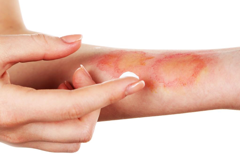 祛疤膏和祛疤贴哪种更好