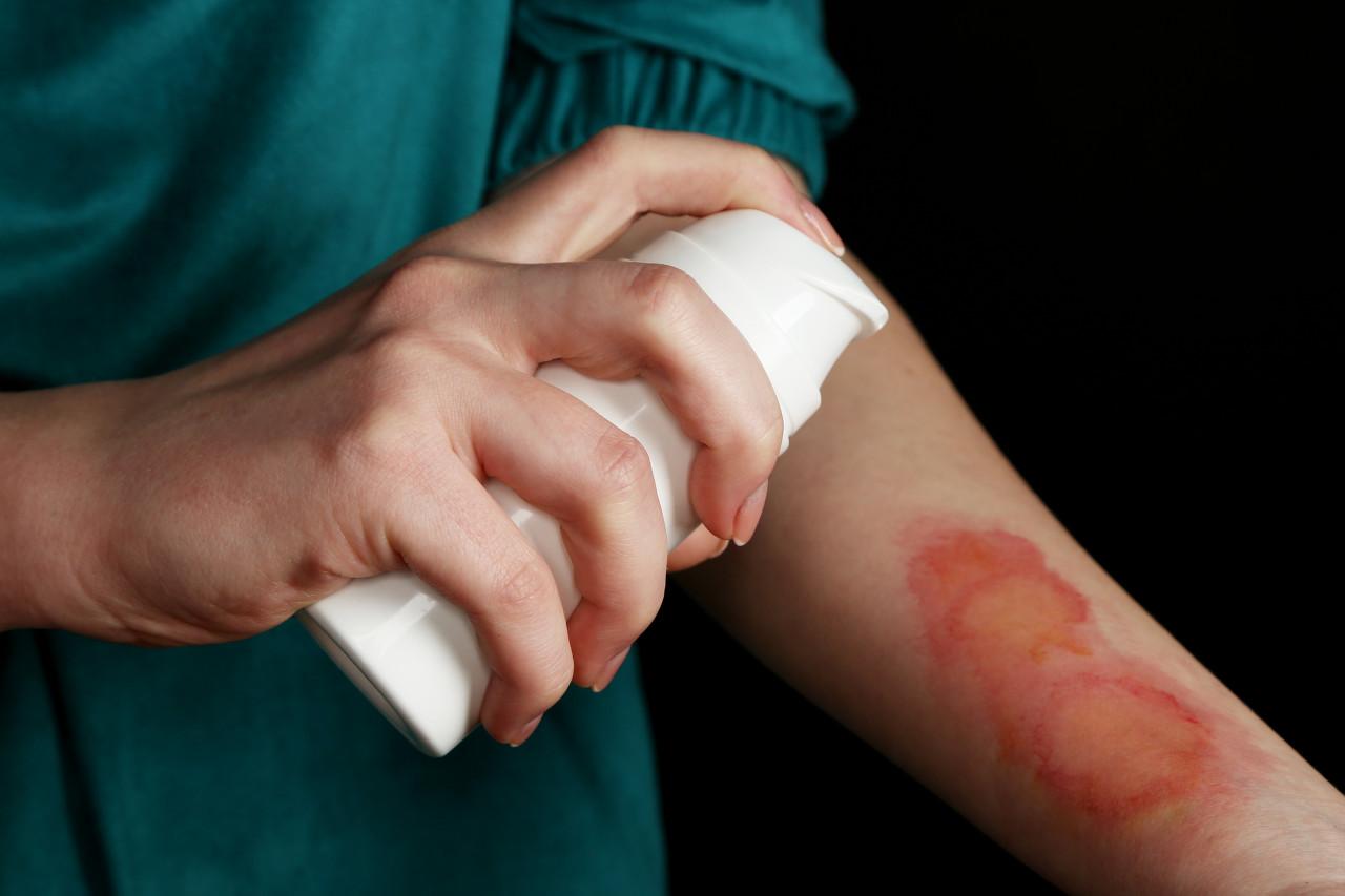 孕妇可以用祛疤膏吗