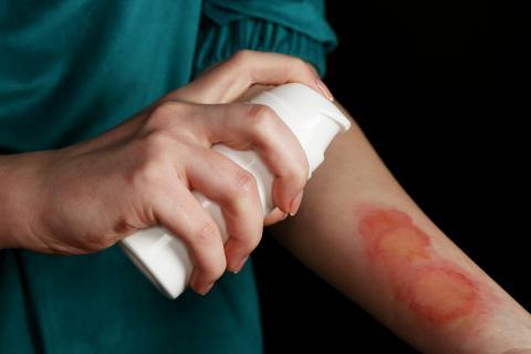 孕妇可以用祛疤膏吗?小孩能用祛疤膏吗?