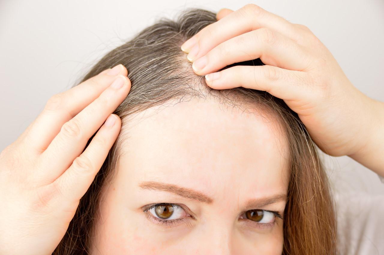 女人的白头发能拔吗