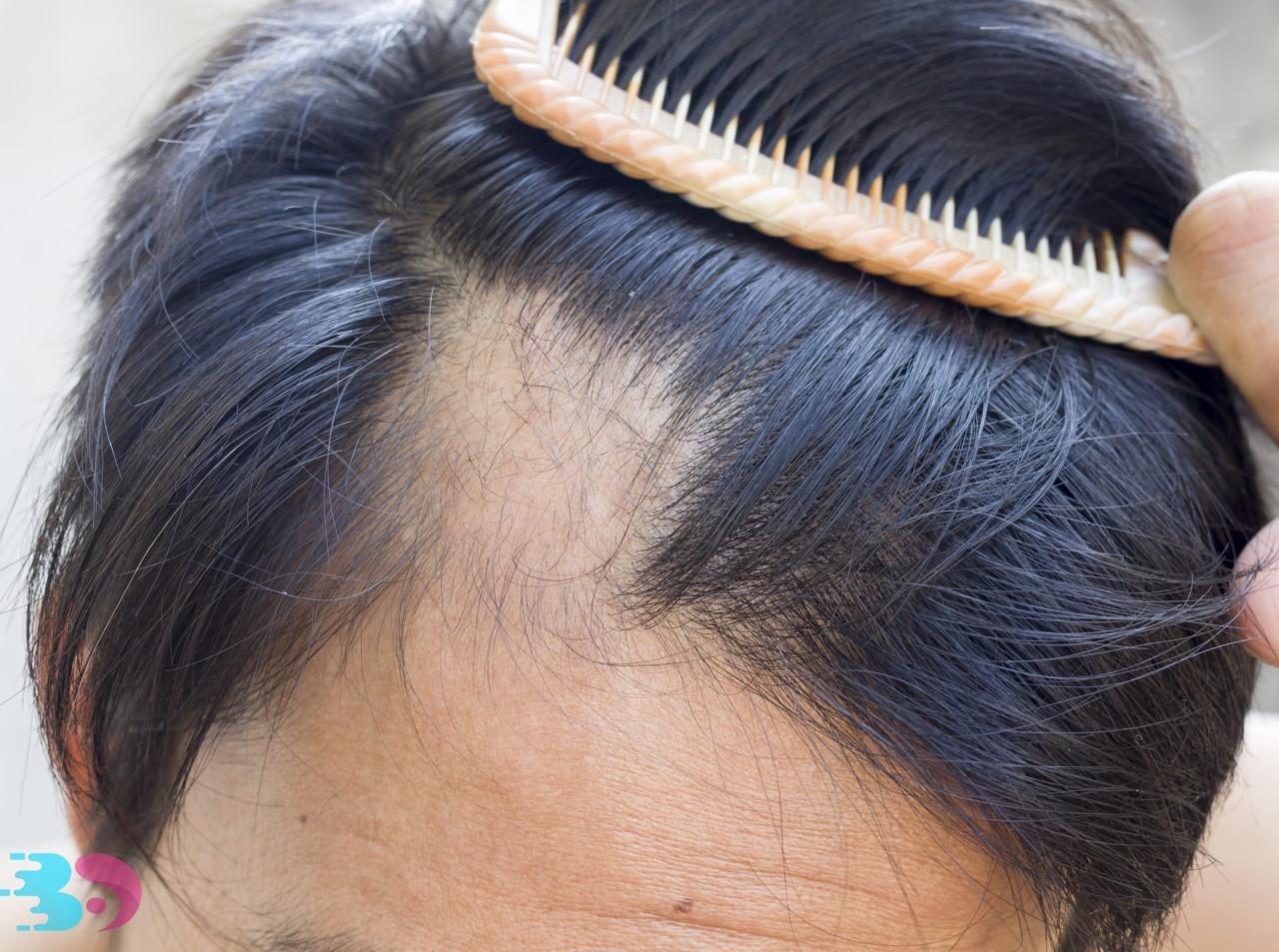 斑秃能不能烫头发