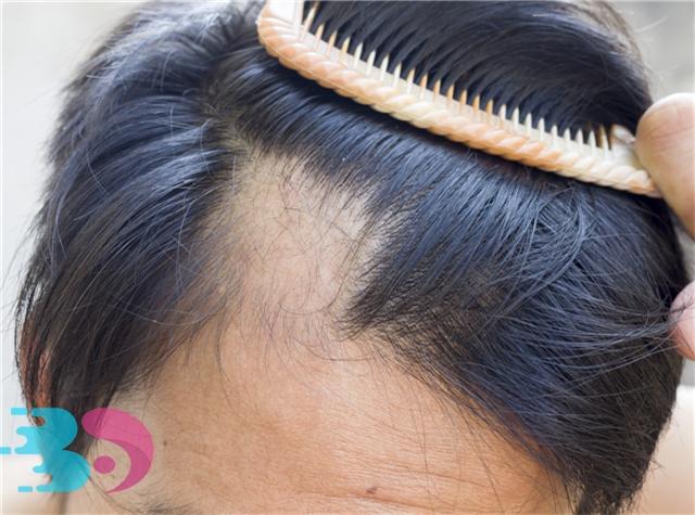 斑秃是什么原因引起的