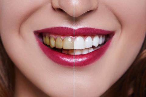 怎么增白牙齿