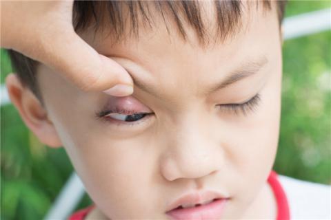 怎样消除眼袋和皱纹