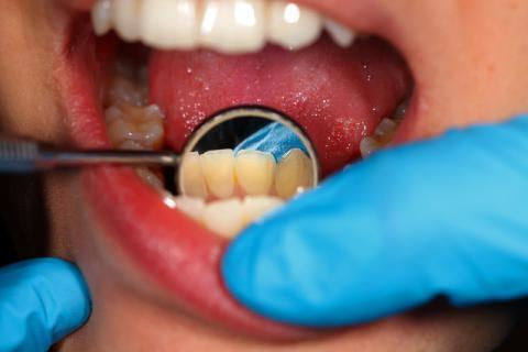 牙齿很黄怎么变白