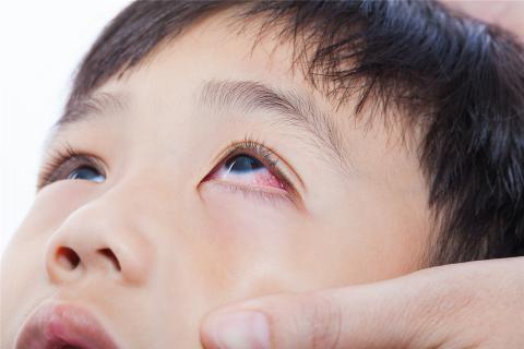 红眼病的禁忌