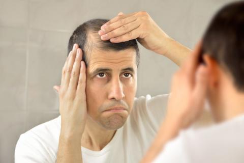 男性斑秃原因