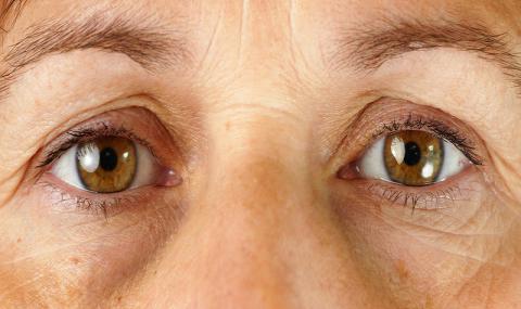 怎样减少皱纹和眼袋