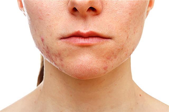 面部痤疮是怎么治疗?哪些原因会引起痤疮?