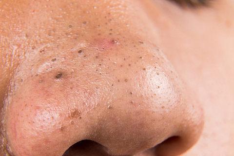 鼻子四周长痘痘