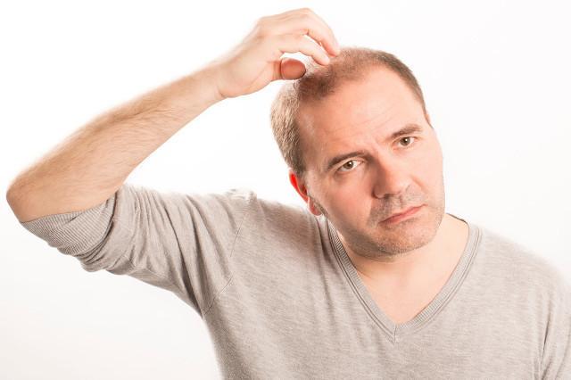 斑秃的原因,预防斑秃的注意事项