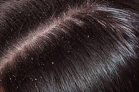 染发前头发越油越好吗