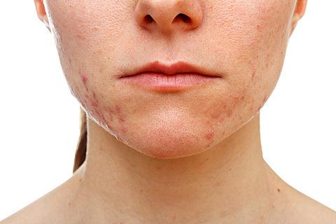 面部痤疮是怎么治疗